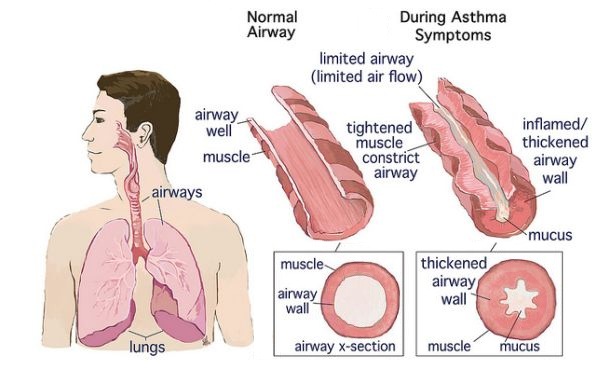 asthma airflow